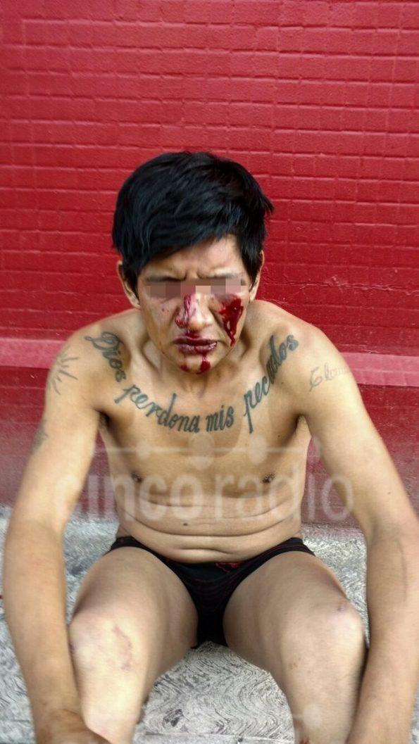 Minutos después, el supuesto asaltante sin ropa y golpeado.